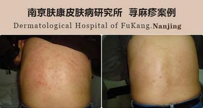 南京治疗荨麻疹的专科医院