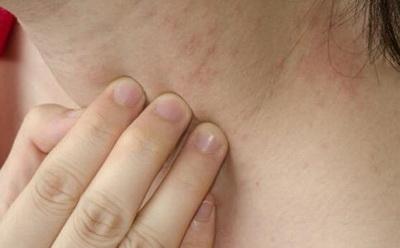 一般出现皮肤过敏会有什么症状